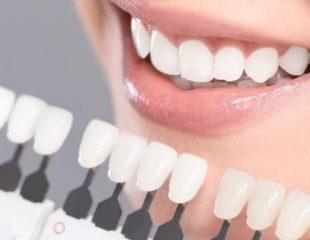 لمینت دندان