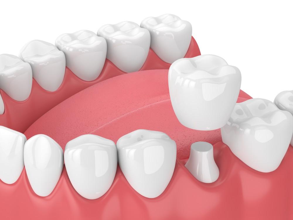تاج دندان