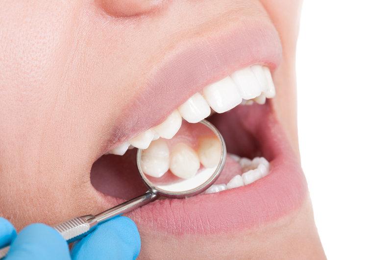 جلوگیری از پوسیدگی و خرابی دندان