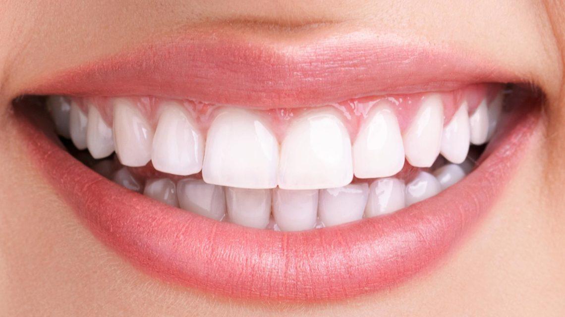 لمینت دندان یعنی چه؟