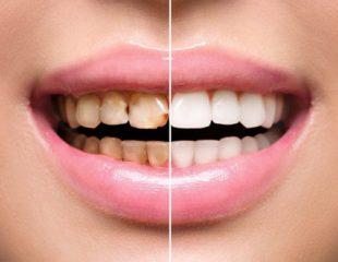 لمینت دندان ارزان