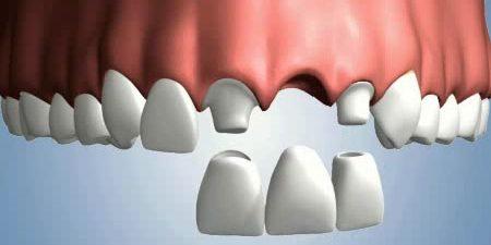 پل دندان مریلند