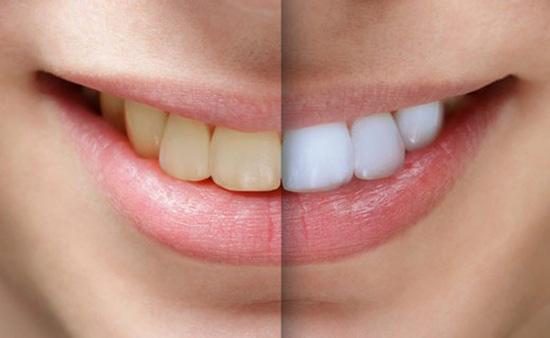 پودر بلیچینگ دندان