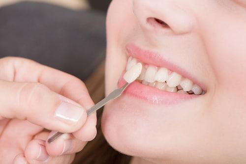 لمینت دندان کج