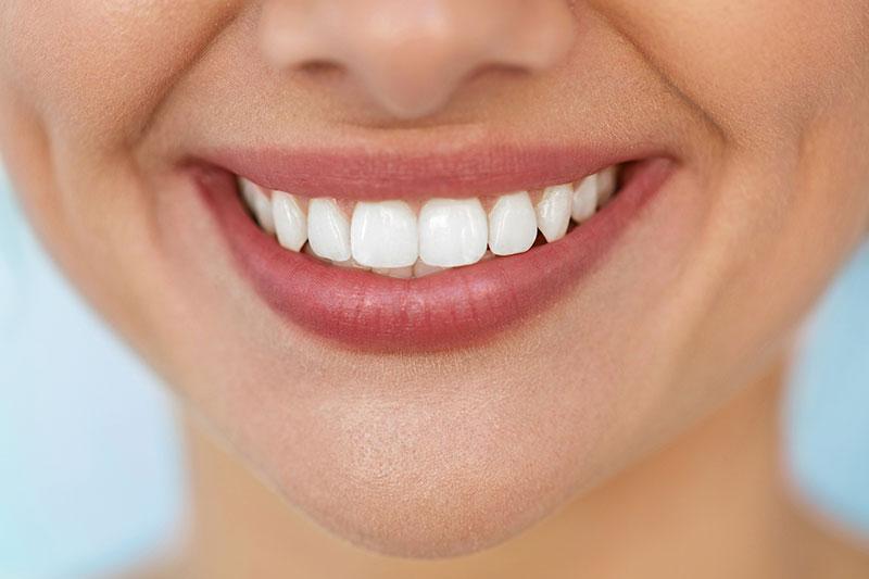 روش های خانگی سفید کردن دندان