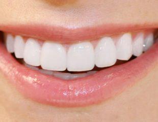 قیمت لمینت دندان در سال 99