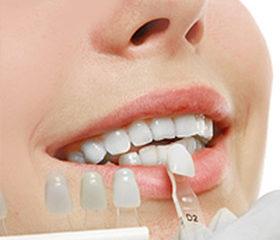 لمینت دندانهای پایین