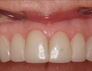 لمینت دندان های پوسیده