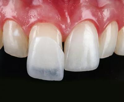 لمینت دندان با تراش