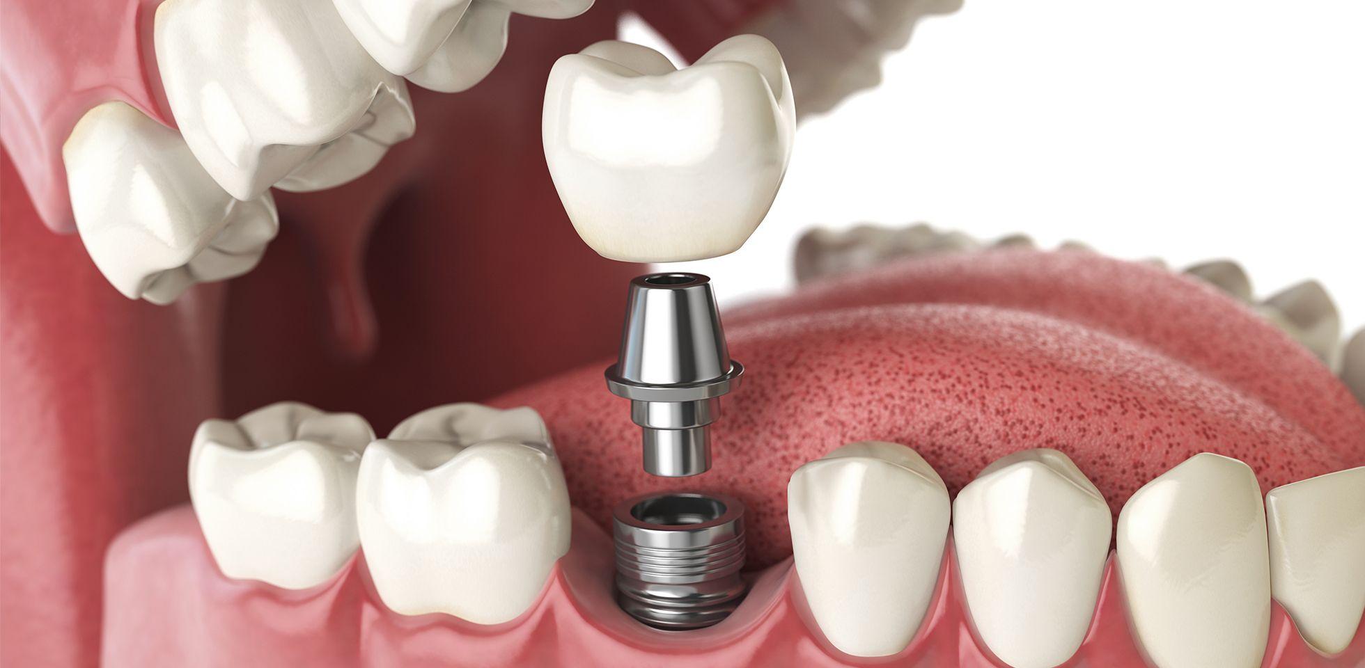 قیمت ایمپلنت دندان-2