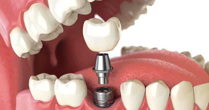 ترمیم زیبایی دندان چیست