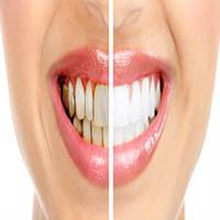 روش های ترمیمی و زیبایی دندان