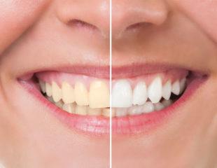 بلیچینگ دندان با بیمه-1