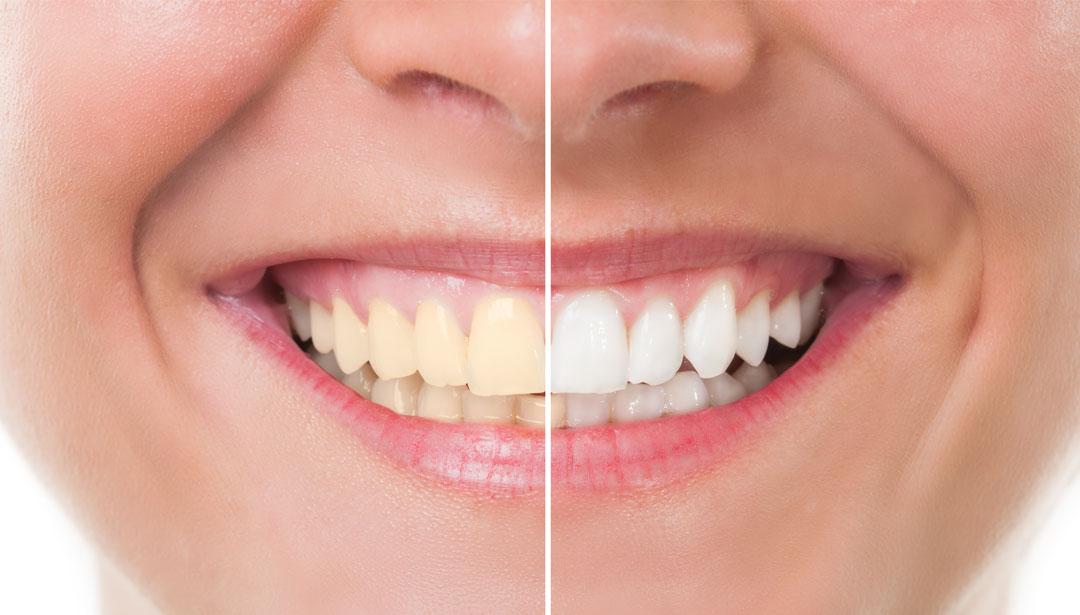 پک بلیچینگ دندان-2