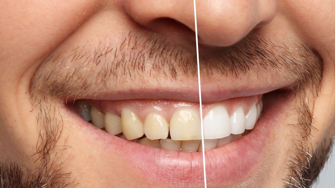 بلیچینگ دندان بهتر است یا کامپوزیت-2