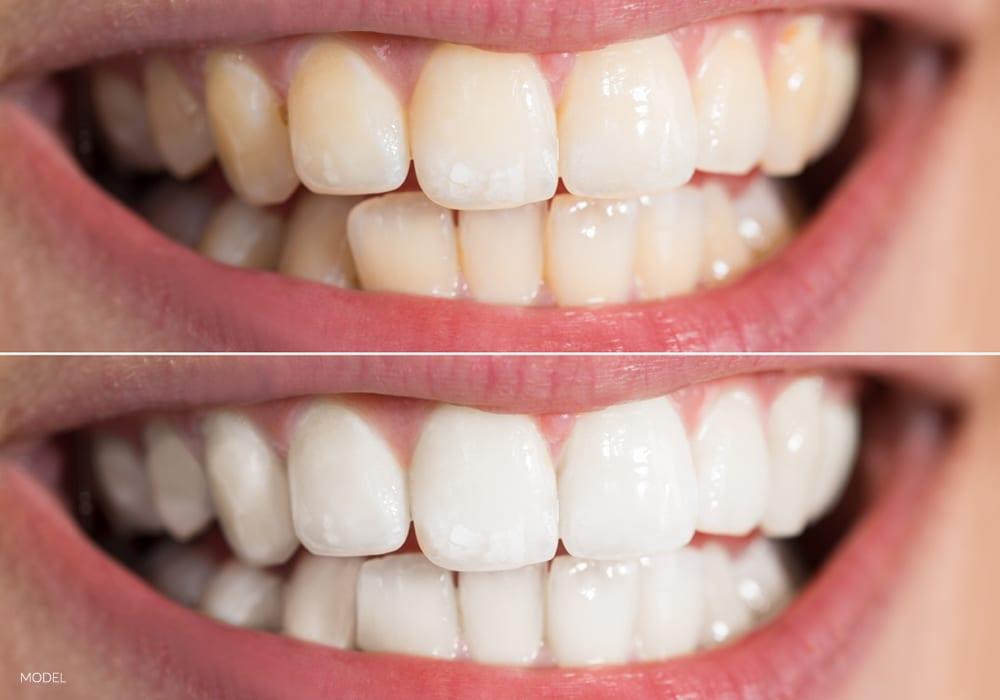 بلیچینگ دندان بهتر است یا کامپوزیت-1