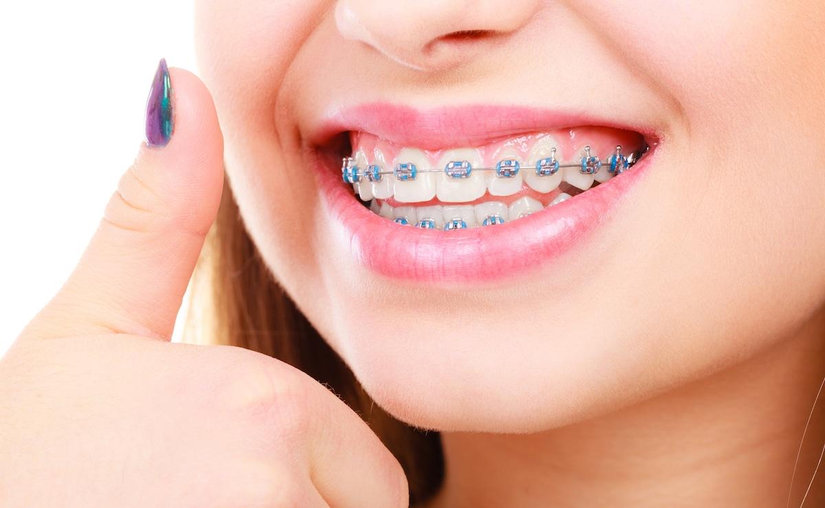 دندانپزشکی-2