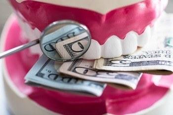 بلیچینگ دندان ارزان قیمت-1