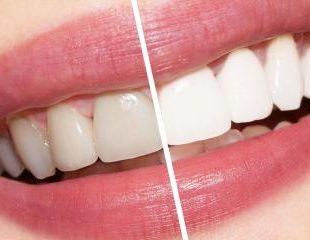 بلیچینگ دندان بعد از ارتودنسی-1