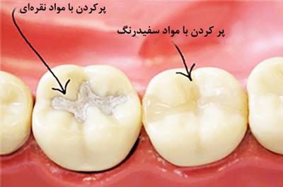 ترمیم دندان پوسیده-1